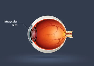 Intraocular Lens.