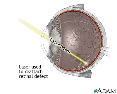 retina-laser