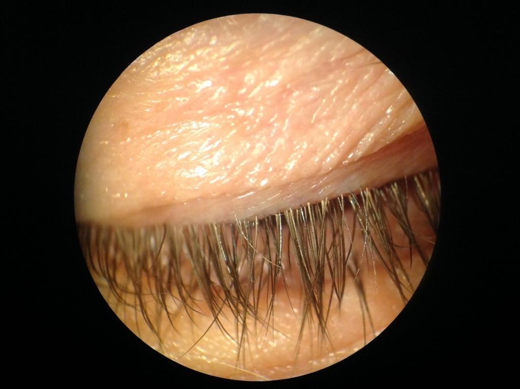 Mild Blepharitis After