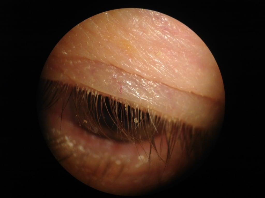 Moderate blepharitis before